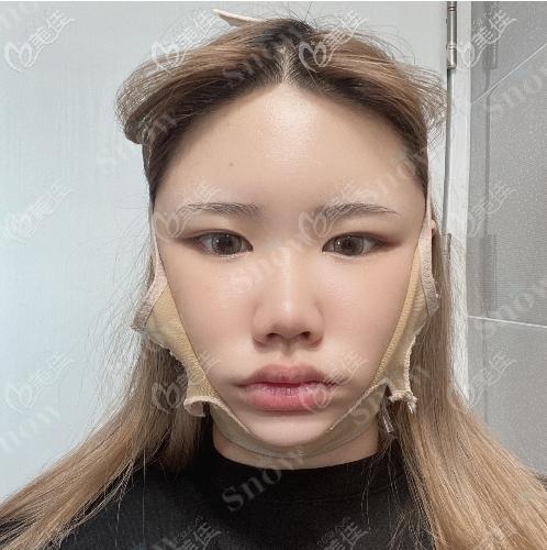 韩国snow面部吸脂真人案例术后第七天