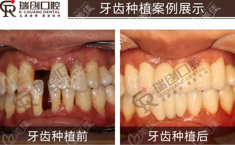 瑞创口腔种植牙案例