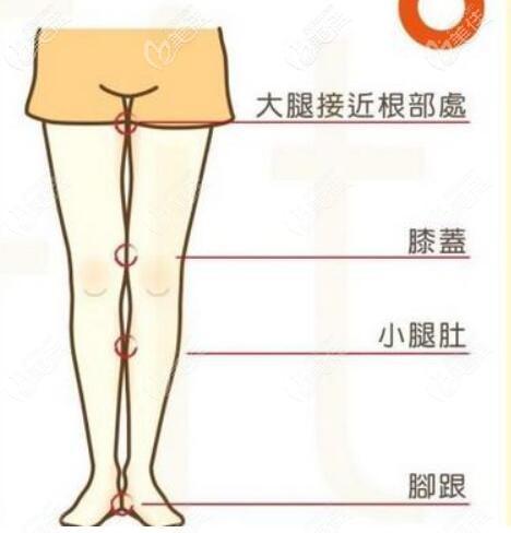 可以单独做膝盖内侧吸脂吗