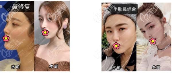杭州张龙医生鼻修复和半肋骨综合隆鼻案例