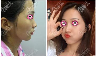 韩国医生李炳浍做鼻子怎么样?鼻综合案例效果参考