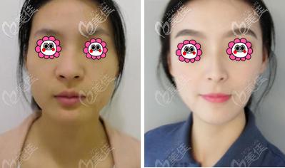 李炳浍鼻修复案例效果参考