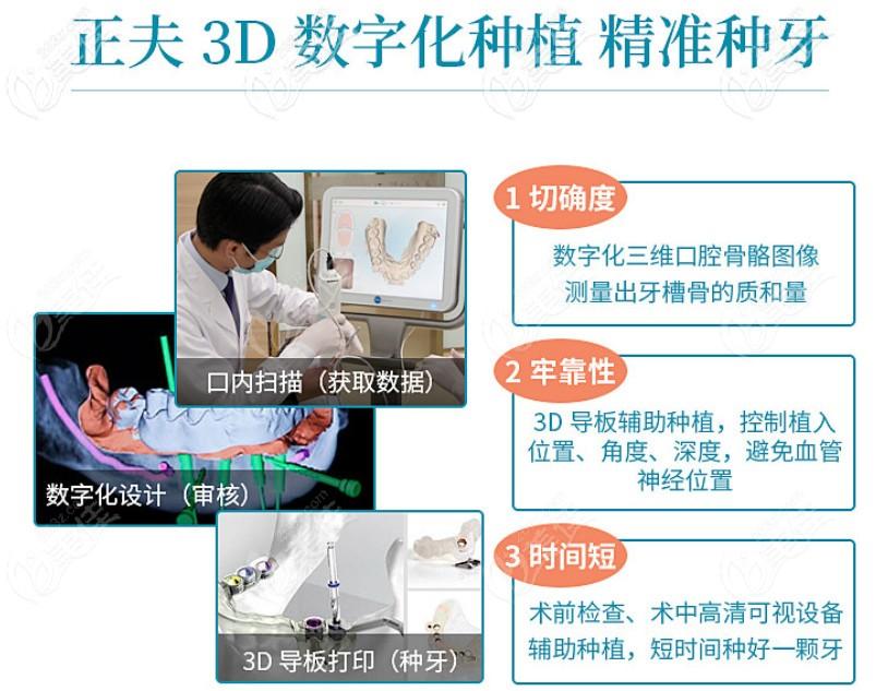 深圳正夫口腔种植牙技术