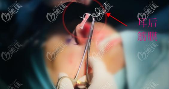 耳后筋膜的大小