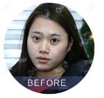 北京雅靓医疗美容诊所张春彦术前照片1