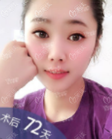 北京雅靓吸脂怎么样?我做5g天使光雕面部吸脂案例效果参考