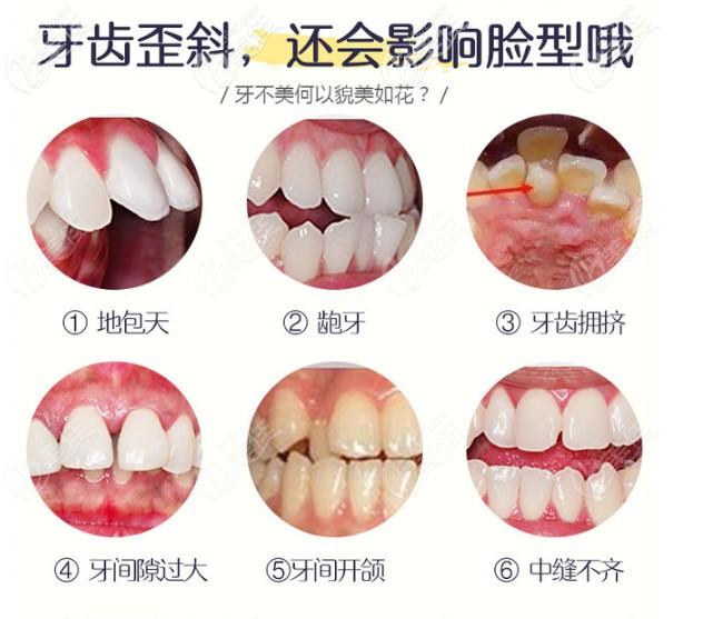 牙齿不齐的类型
