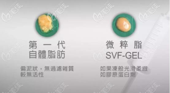 svf脂肪胶的形态