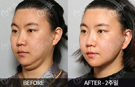 韩国Liting整形外科面部提升去双下巴效果图