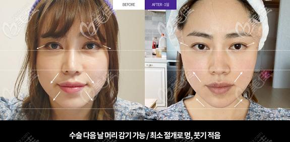 韩国Liting整形外科面部小拉皮手术效果图