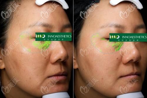使用4次英诺抗晒素后眼周细纹对比