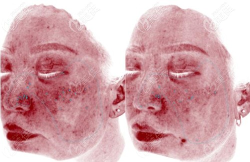 使用4次英诺抗晒素后鼻翼泛红对比