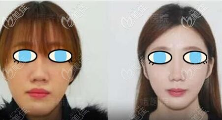 长脸正颌手术变短脸真实案例效果图片