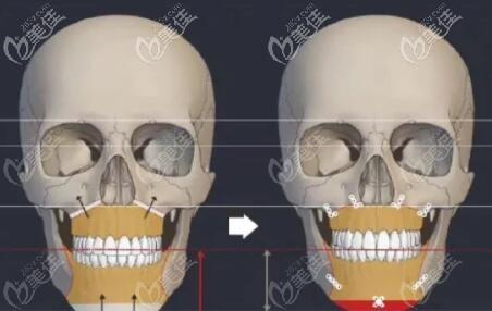 双鄂手术过程图解