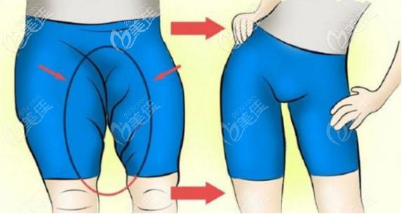 大腿吸脂后皮肉变松弛的解决方法一之拉皮提升