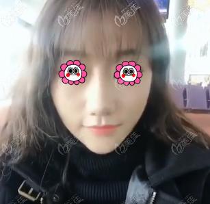 在北京艺星做快翎线脸部提升效果蛮好的,而且也没有脸变大的情况