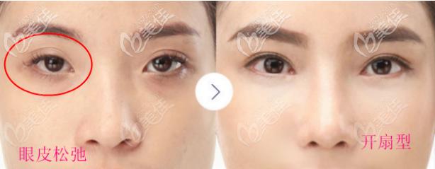 上眼皮松弛凹陷适合做窄的开扇型双眼皮哦,这比做提眉适合多了