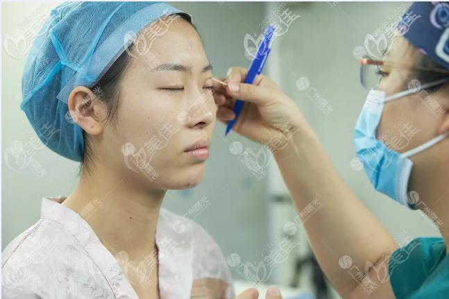 广州双眼皮修复医院我推荐广州曙光整形医院