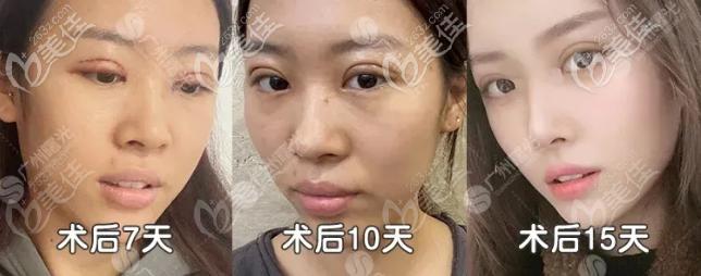 广州曙光双眼皮修复案例效果图