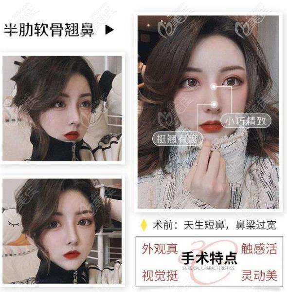 深圳艺星文丰医生肋软骨隆鼻案例