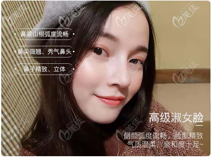 深圳文丰医生隆鼻恢复超快