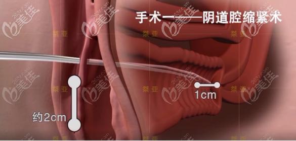 生物束带私密紧缩术之阴道腔紧缩术步骤一