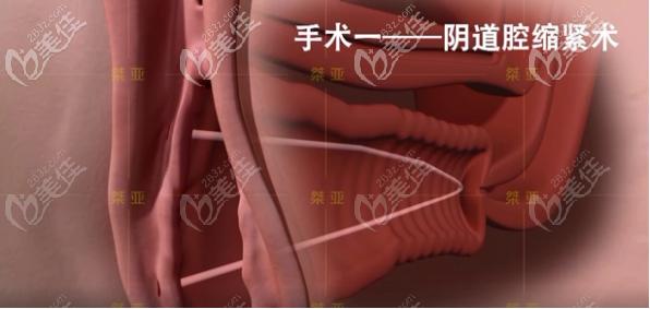 生物束带私密紧缩术之阴道腔紧缩术步骤二