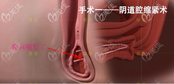 生物束带私密紧缩术之阴道腔紧缩术步骤四