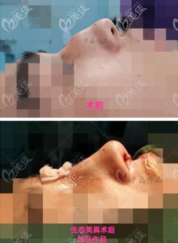 单磊医生驼峰鼻修复效果图