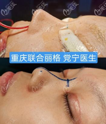 重庆联合丽格宁式生态鼻