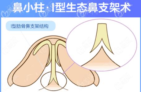 重庆时光I型肋骨鼻支架术
