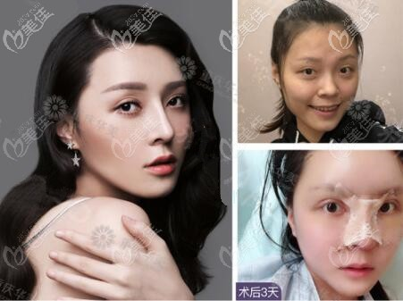 张国强医生半肋软骨鼻综合案例
