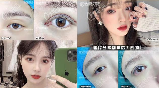 广州美携医疗美容双眼皮案例