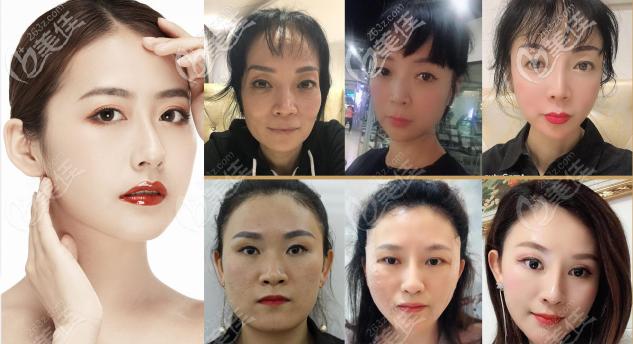 广州美携医疗美容面部年轻化案例