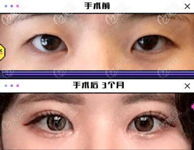 韩国TS整形外科医院李相均术前照片1