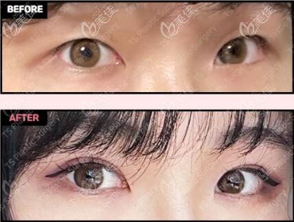 韩国全切双眼皮术前术后效果对比照
