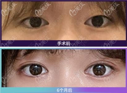 韩国TS整形外科医院李相均术后照片1
