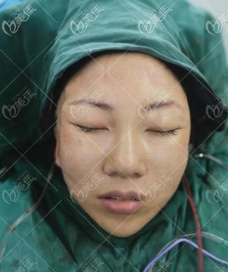 韩国Liting整形外科中下面部小拉皮提升手术即刻照片
