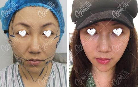 韩国Liting整形外科李成俊术前照片1