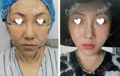 韩国医生李成俊面部mini拉皮除皱手术恢复照片,花费8万