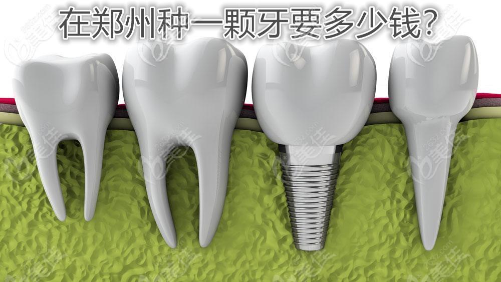 2021年在郑州做种植牙价格表已更新,单颗和半口种牙费用都很亲民活动海报五