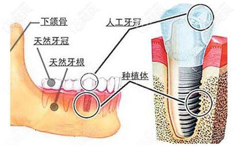 种植体在牙槽骨的位置示意图