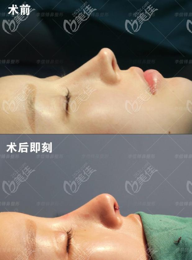 李信锋医生做的鼻子失败修复案例图片