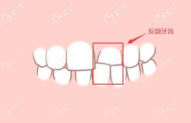 个别牙齿反颌症状图片
