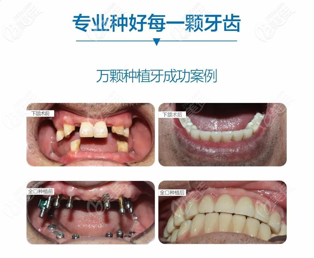 祝医生其它种植牙案例