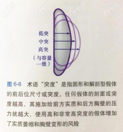 假体的凸度