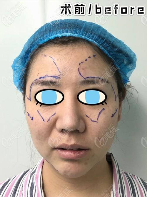 郑州艺龄医疗美容门诊部王俊民术前照片1