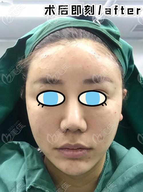 郑州艺龄医疗美容门诊部王俊民术后照片1