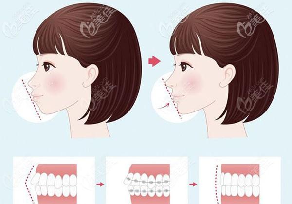 牙齿矫正对颌骨的改善