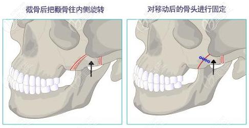 颧骨内推手术过程图解